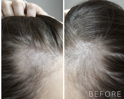 Post-partum hair loss: a PRP case study