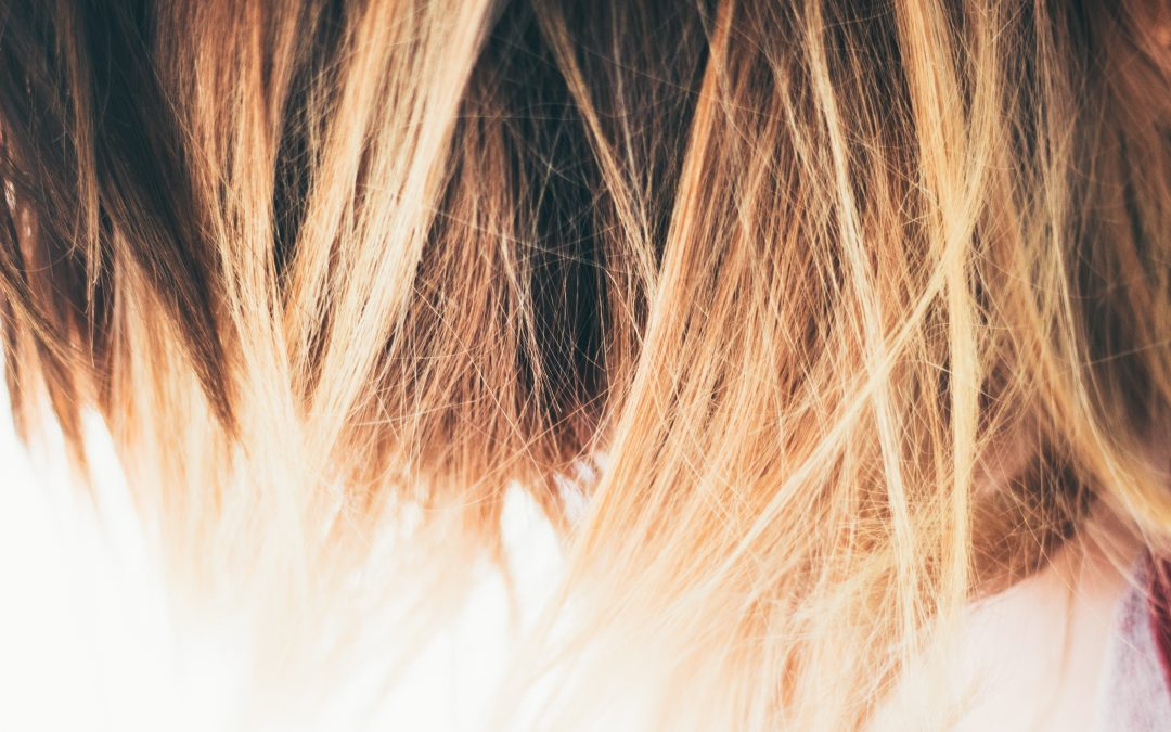 How we treat hair loss with PRP